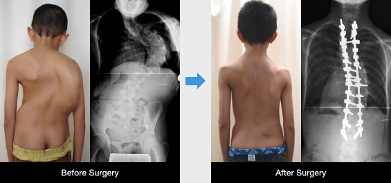 Spine And Spinal Cord Division|department Of Orthopaedic